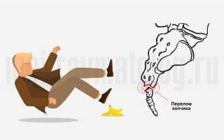 Перелом копчика: симптомы и последствия у женщин и мужчин