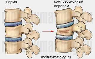 Лечение и реабилитация детей с компрессионным переломом позвоночника