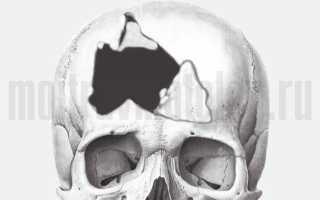 Последствия после перелома свода и основания черепа