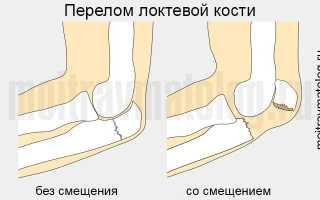Перелом локтевого сустава: лечение и последствия