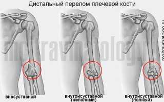 Перелом плеча (плечевой кости)