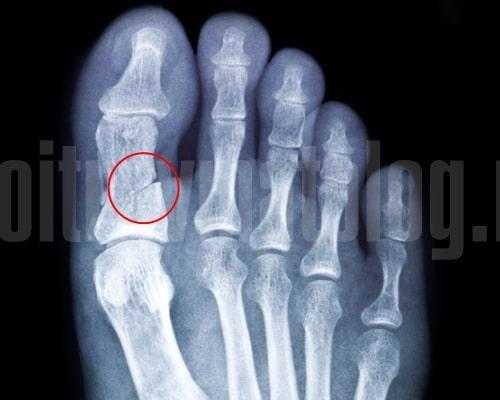 Как разработать палец после перелома фаланги на руке и ноге