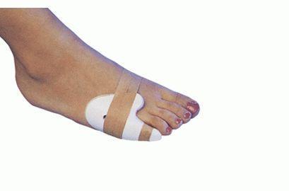 фиксация пальца стопы