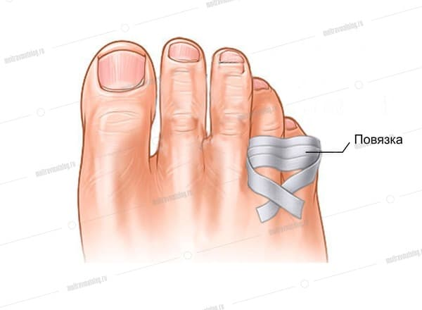 фиксация поврежденного пальца