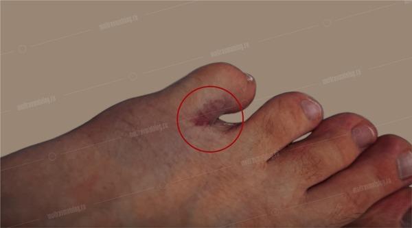 гематома пальца