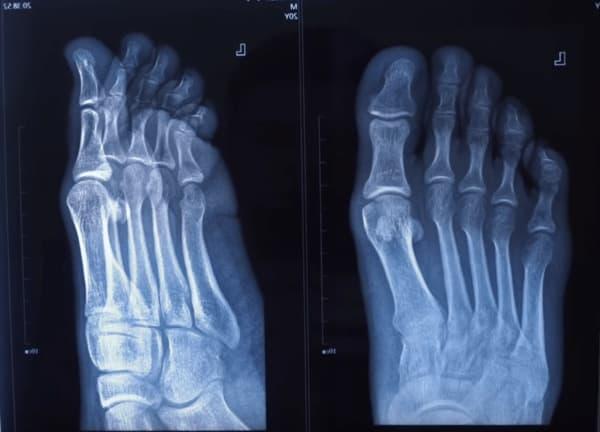 рентгеновский снимок в двух проекциях
