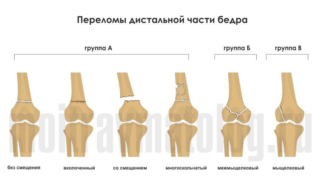 переломы дистальной части бедра