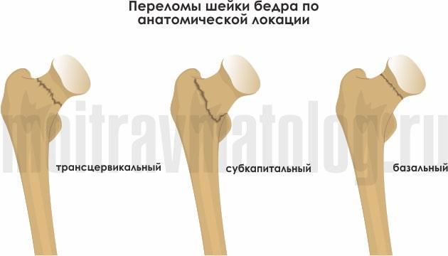 внутрисуставной проксимальный перелом бедра