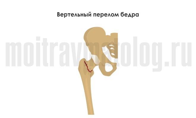 вертельный перелом бедра