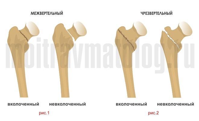 вертельный перелом