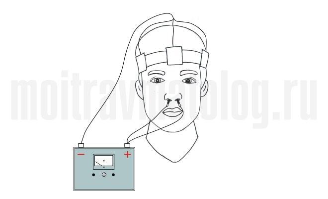 электрофорез на нос