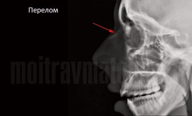 рентгеновский снимок перелома носа