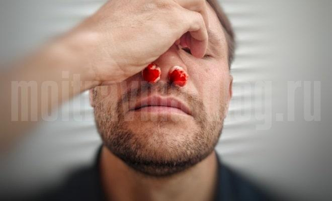 симптомы перелома носа