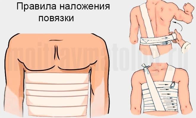 правила наложения повязки