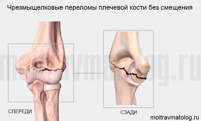 Чрезмыщелковые переломы плечевой кости без смещения
