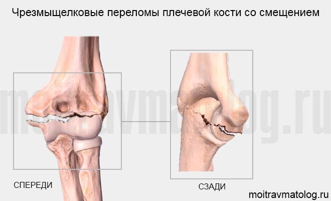 Чрезмыщелковые переломы плечевой кости со смещением