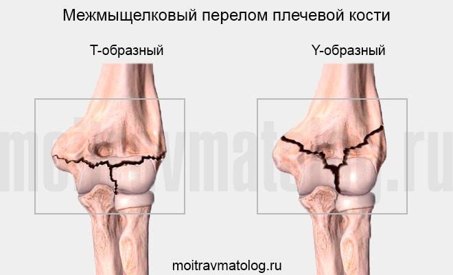 Межмыщелковый перелом плечевой кости