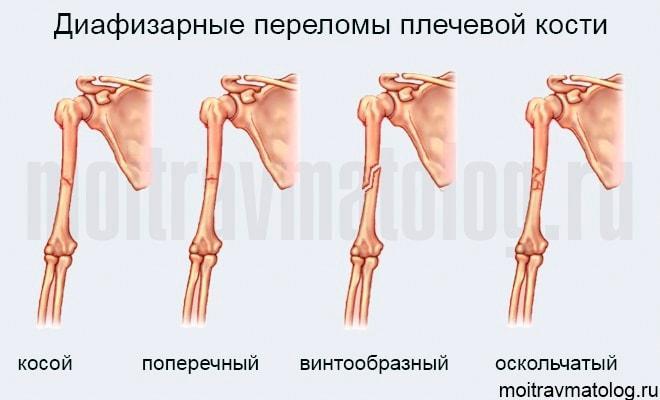 диафизарный перелом плечевой кости