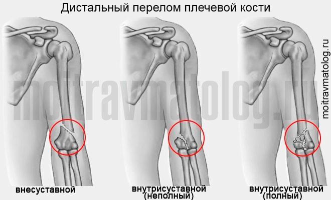 дистальный перелом плечевой кости