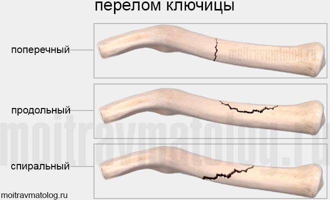 виды переломов ключицы