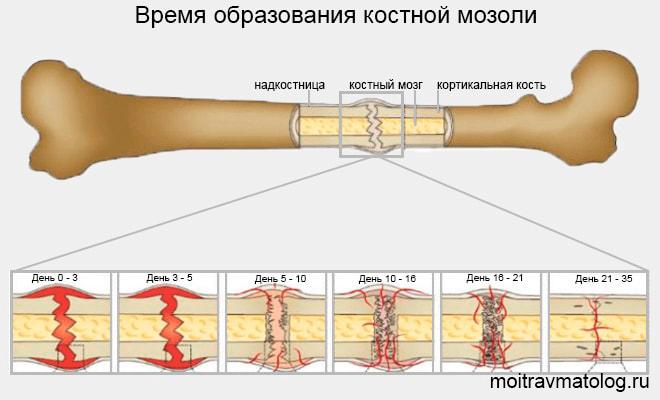 Время образования костной мозоли